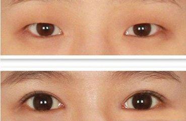 微创韩式双眼皮